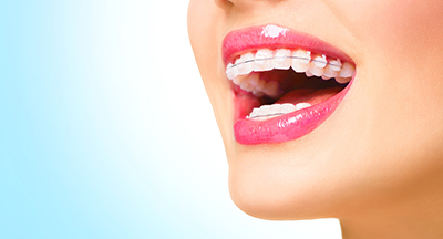 clear braces in clovis carlsbad & hobbs nm