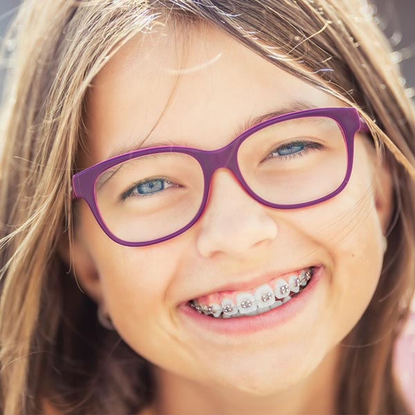 metal braces in carlsbad nm