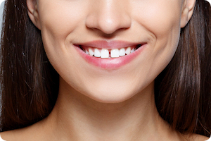 can braces fix gaps in teeth in clovis nm